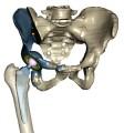LOGO_Partial replacement pelvis by CT patient data