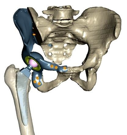 LOGO_Partial replacement pelvis by CT patient data