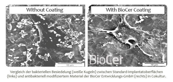 LOGO_SeptoCer™ - Antibakterielle Implantatbeschichtungen
